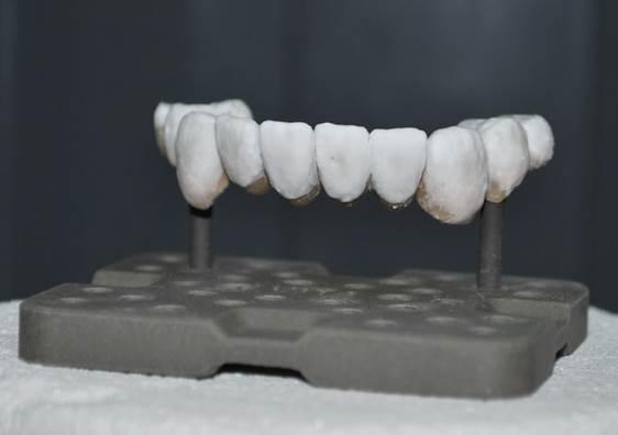 porselein metaalbrug pure dental