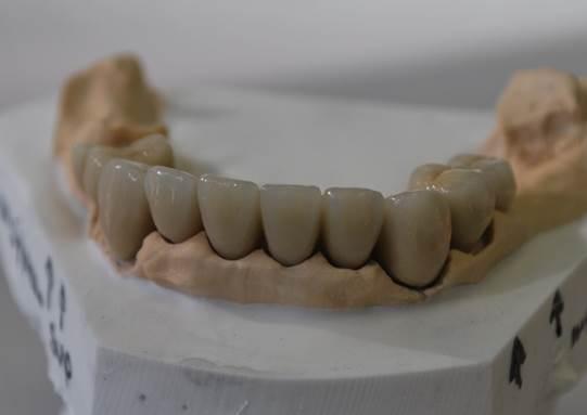 porselein metaalbrug pure dental hoogezand