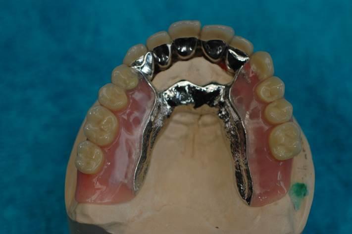 Porselein Metaalbrug met precisieverankering en frame pure dental